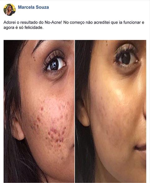 No-Acne